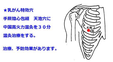 乳がん癌治療は温灸治療が効きます。